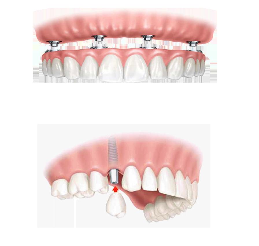 implantes copia